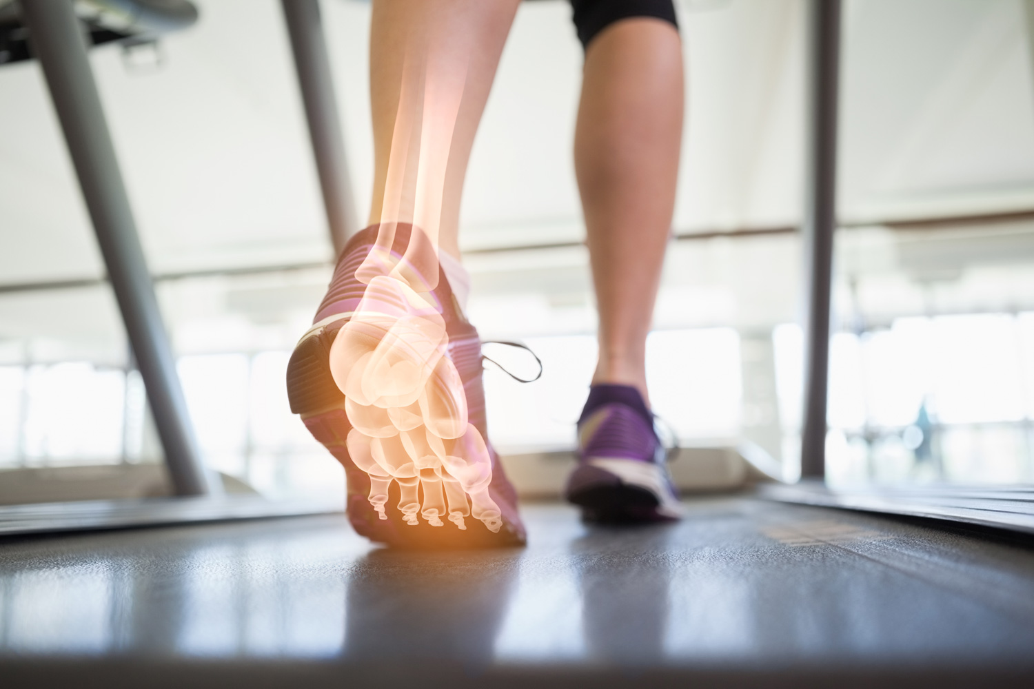 Skeleton structures in foot highlighted over someone walking on a machine